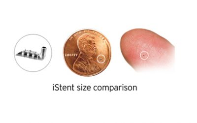 iStent : Size does matter