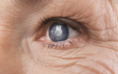 Three Things You Should Know About Cataracts
